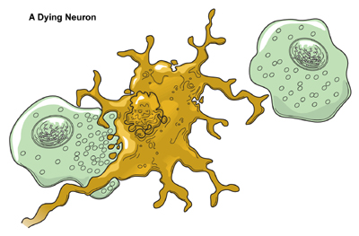 neuron_dying1